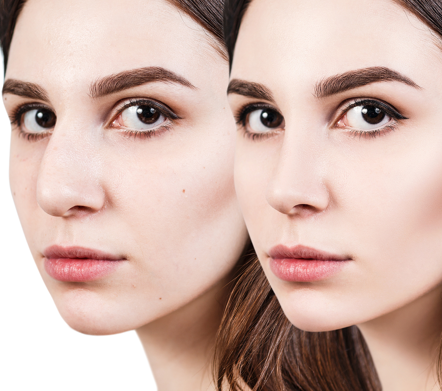 Dean Toriumi reviews the big questions you should ask yourself before rhinoplasty
